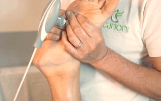 Trattamento dei fascite plantare con Tecarterapia Human Tecar